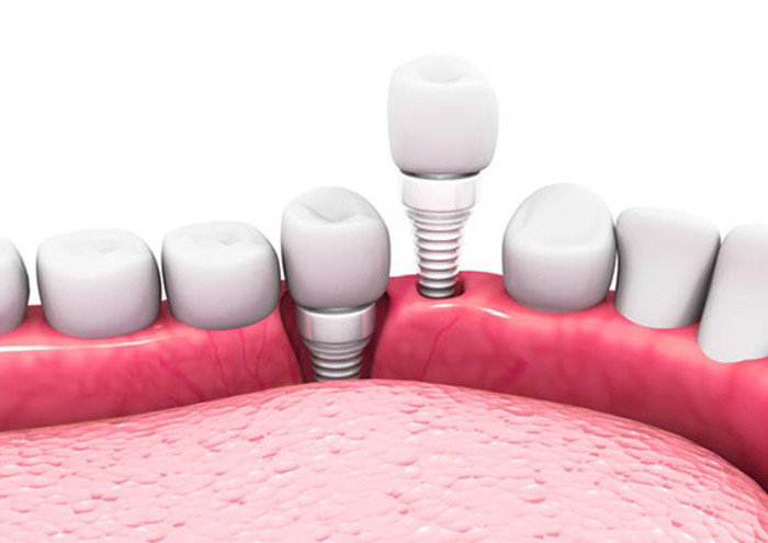 All-Ceramic Implants