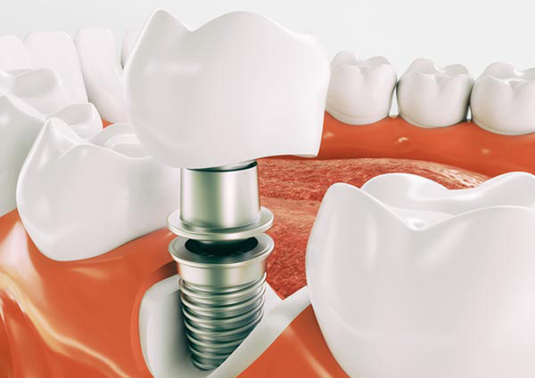 Single tooth implants
